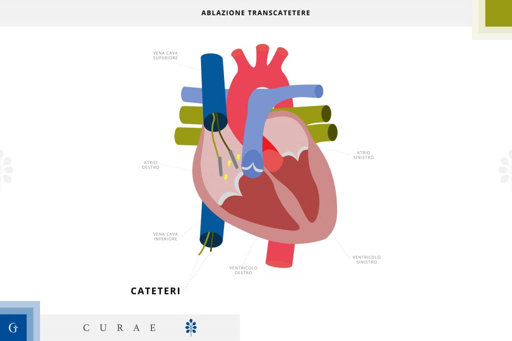 ablazione cardiaca