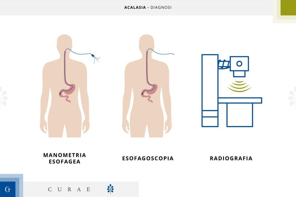acalasia esofagea centri specializzati