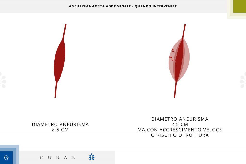 aneurisma aorta addominale quando operare
