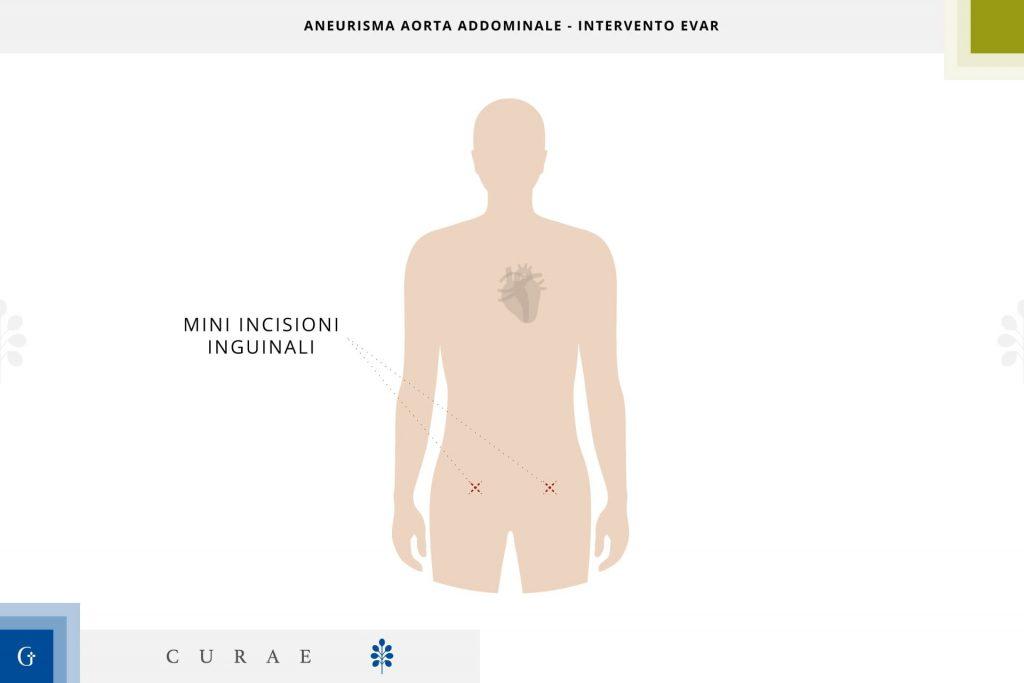 aneurisma aorta addominale tecnica con endoprotesi vascolare