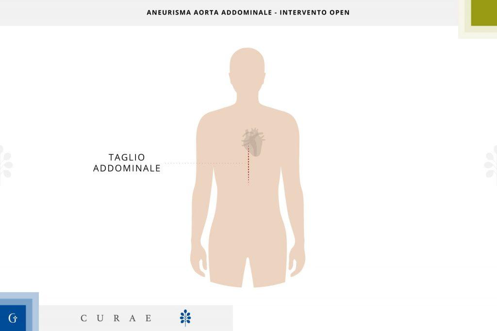 aneurisma aorta addominale tecnica open