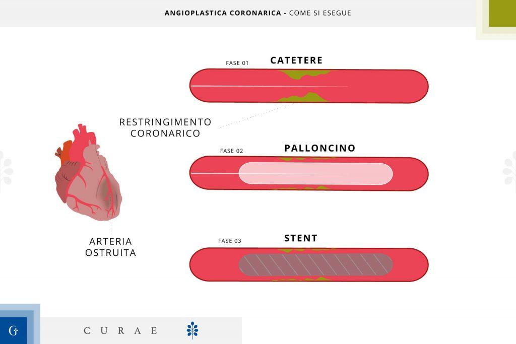angioplastica coronarica