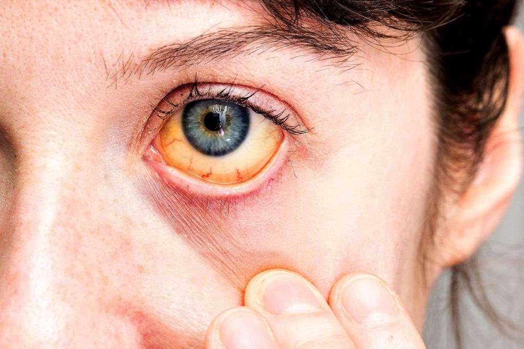 cirrosi epatica sintomi