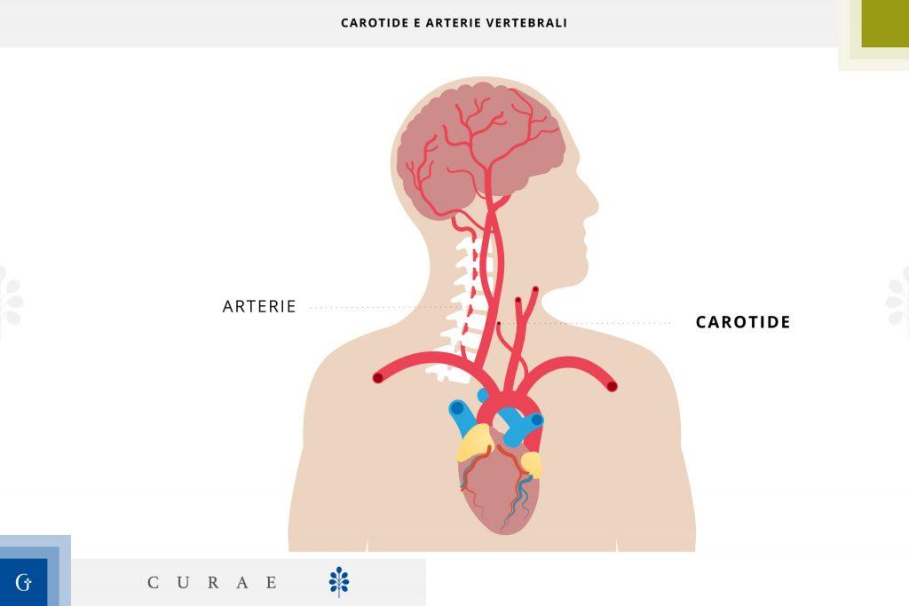 ecocolordoppler carotidi