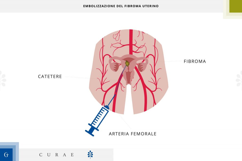 embolizzazione fibroma