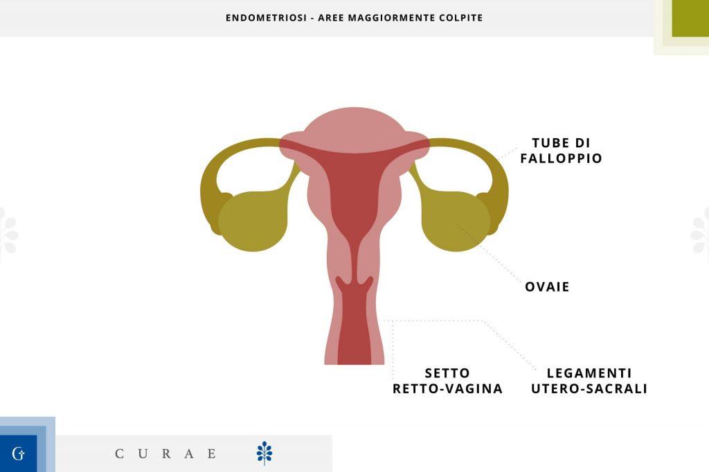 endometriosi intestinale
