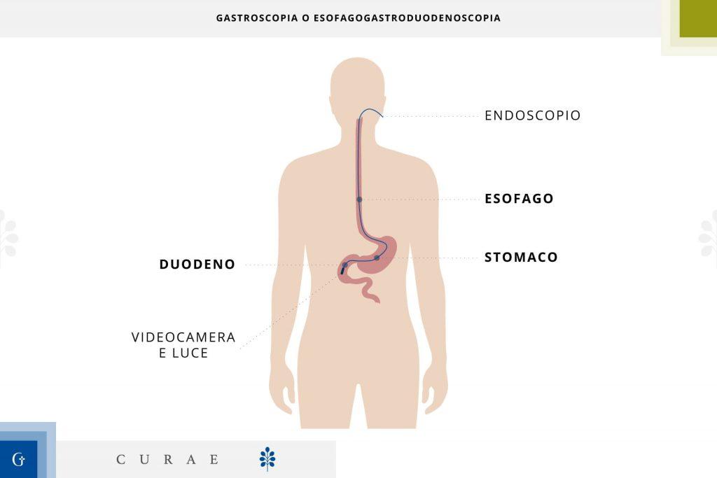 esofagogastroduodenoscopia con biopsia