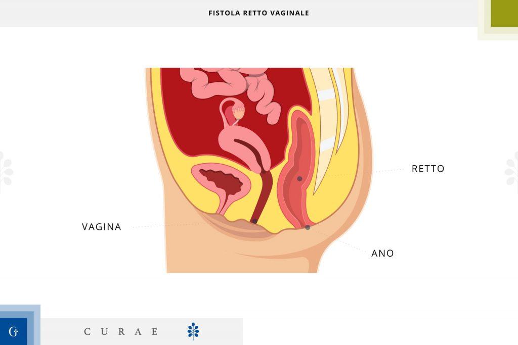 fistola retto vaginale