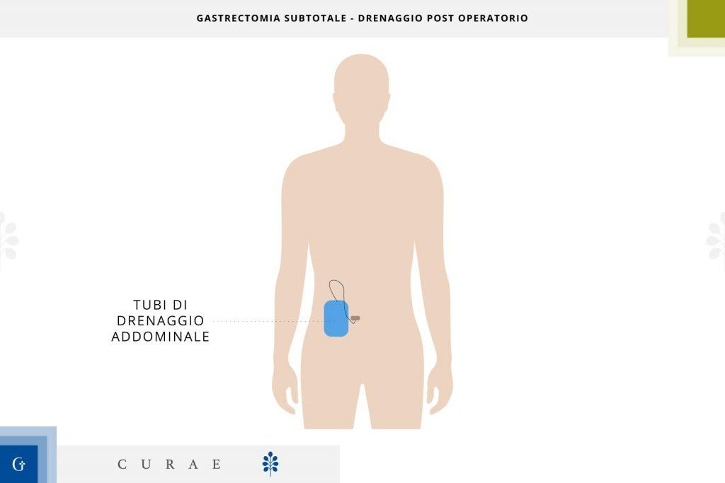 gastrectomia subtotale post operatorio