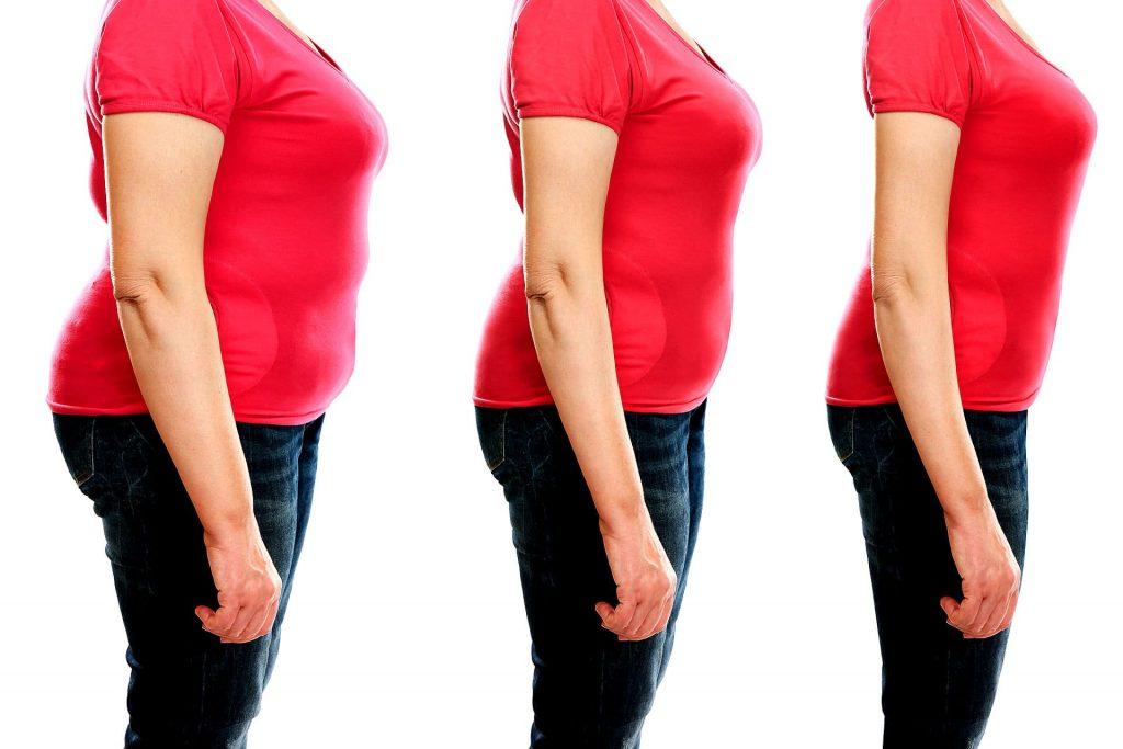 gastrectomia totale alimentazione