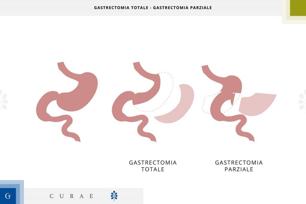 gastrectomia totale gastrectomia parziale