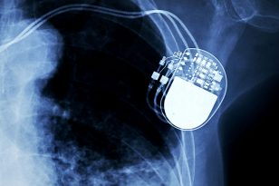 impianto pacemaker