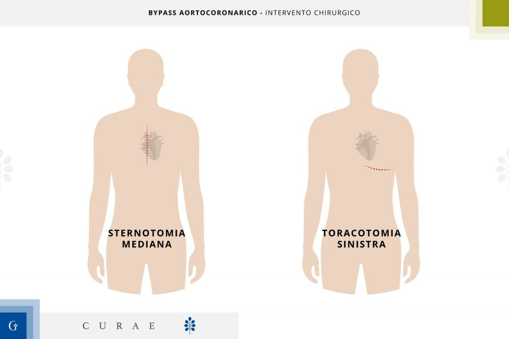 intervento bypass coronarico
