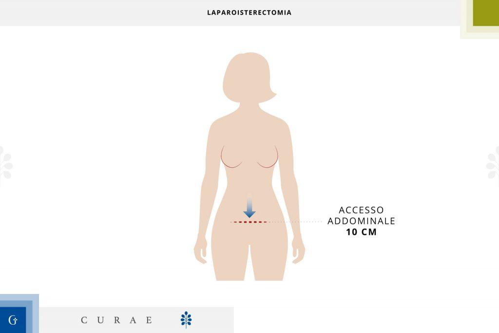laparoisterectomia