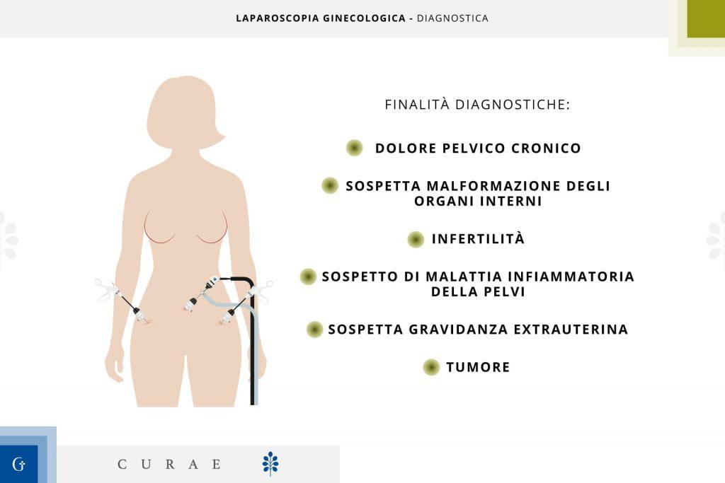 laparoscopia ginecologica diagnostica