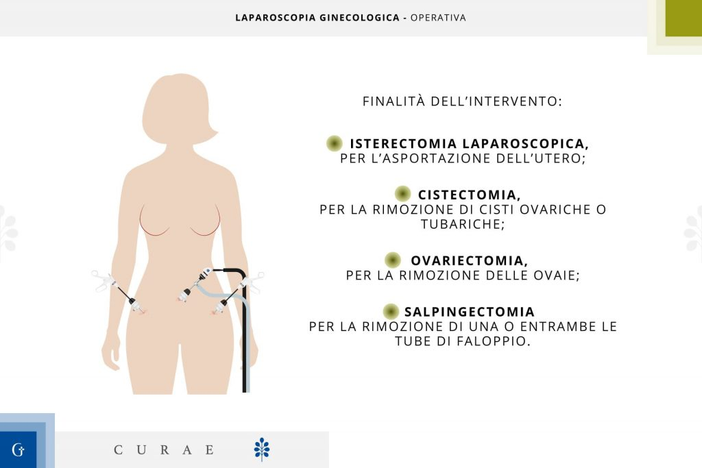 laparoscopia ginecologica operativa