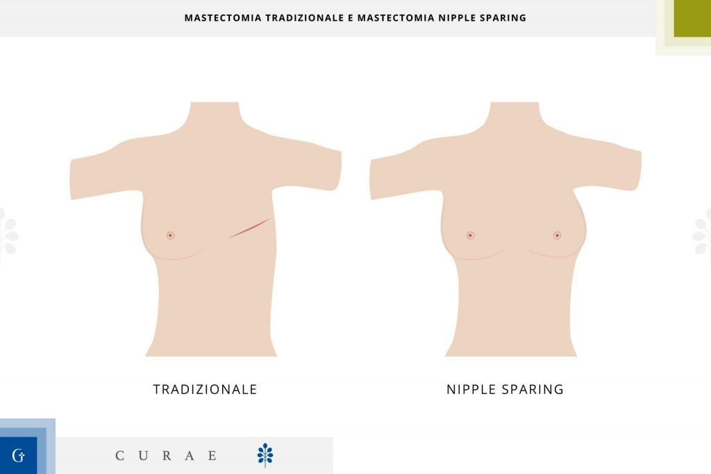 mastecomia nipple sparing