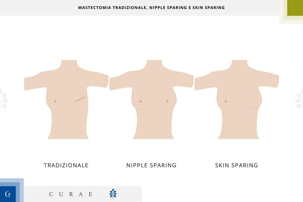 mastectomia conservativa