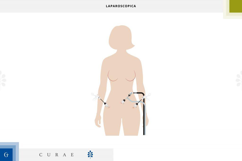 laparoscopica