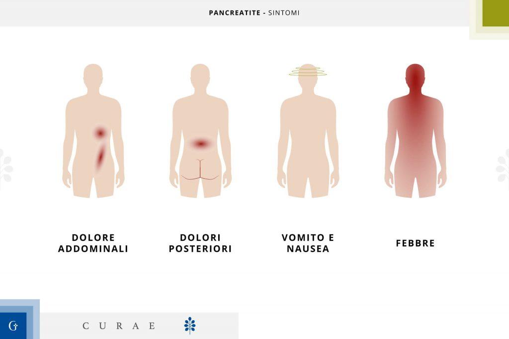 pancreatite acuta sintomi