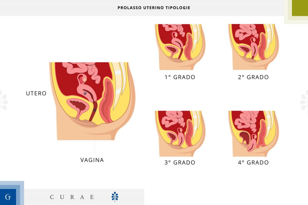 prolasso uterino