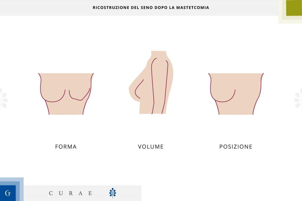ricostruzione del seno