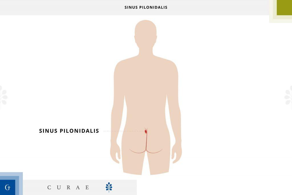 sinus pilonidalis