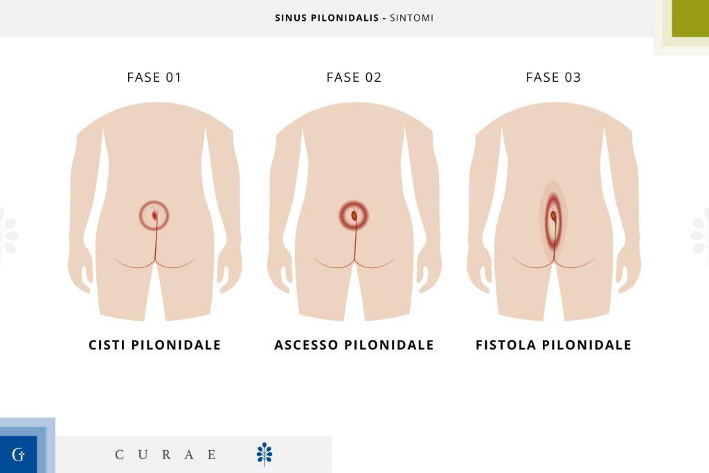 sinus pilonidalis sintomi