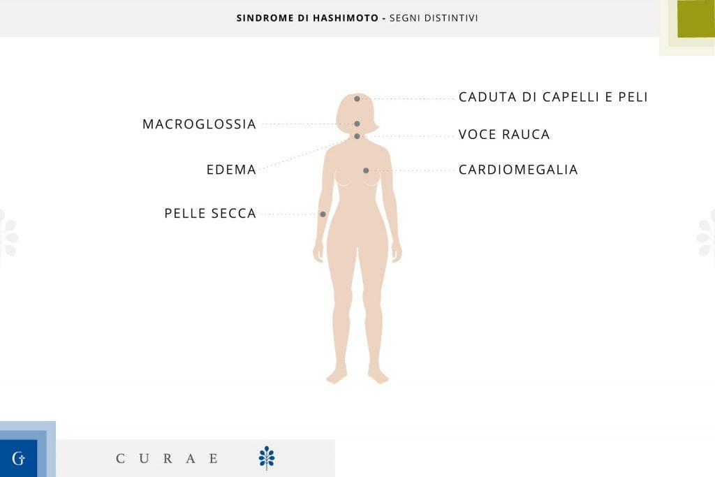 tiroidite di hashimoto sintomitiroidite di hashimoto sintomi